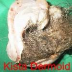 Penyakit Kista Dermoid