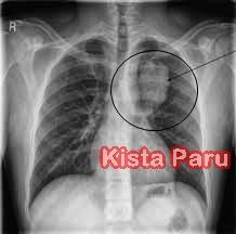 Obat Herbal Kista Paru